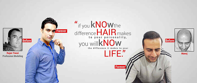 Best Hair Transplant Result in Dhar